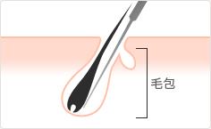 脱毛方法の図